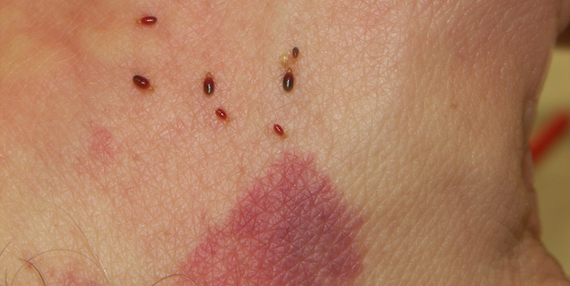 bed bug bite treatment tips - bed bug treatment site
