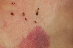 bed-bug-rash