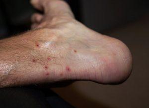 Chigger Bites on Foot