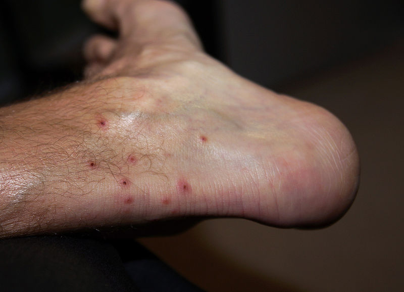 Chigger Bites on Foot