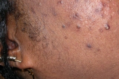 bed-bug-bites-black-people-e1478526373143