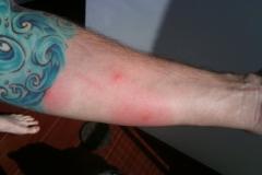 bed-bug-bites-tattoo-arm